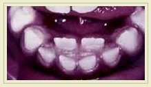Not the Six-Year-Old's mouth. This photo comes courtesy of the blog Pediatric Dentistry.